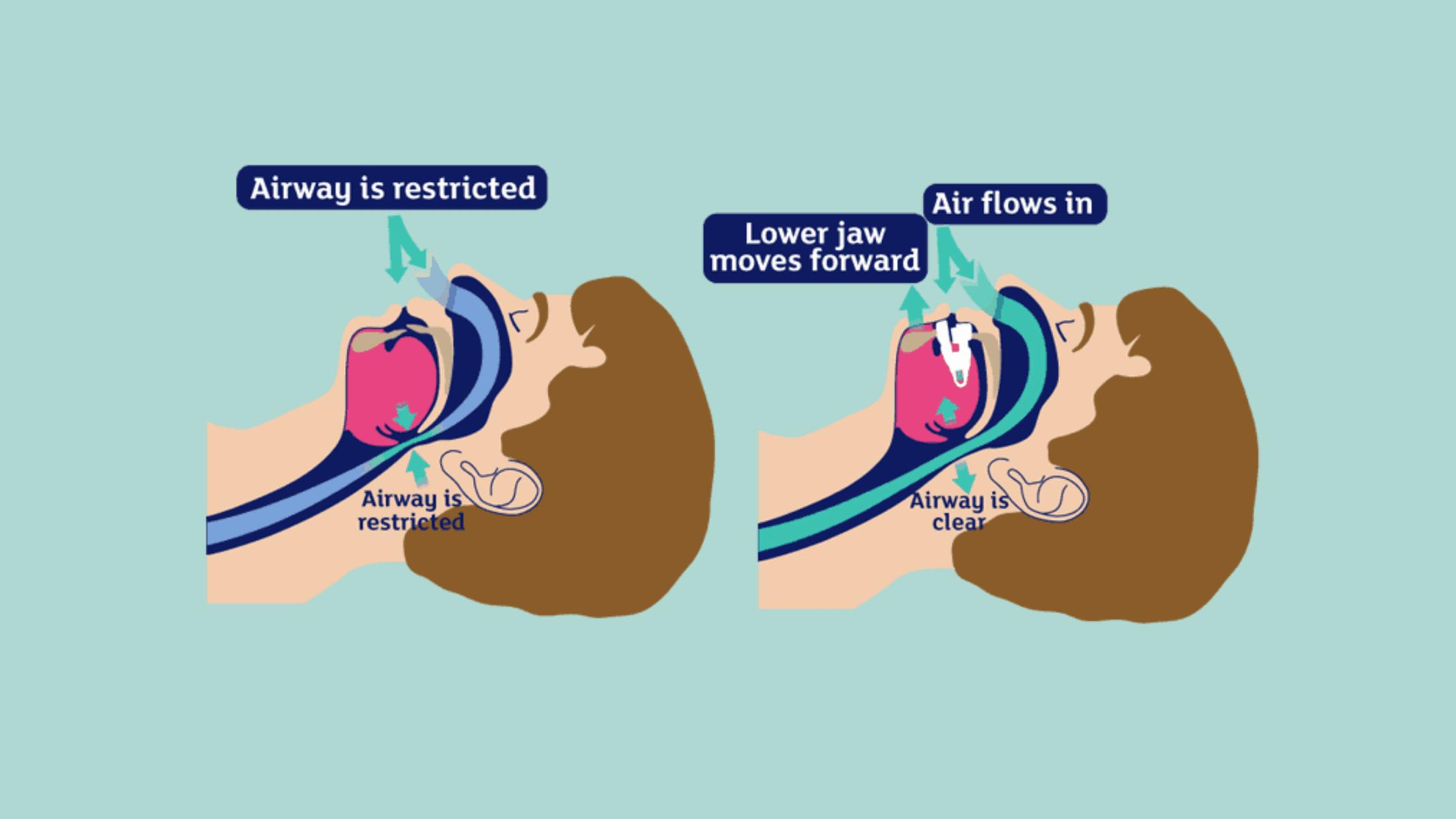 The Stop Snoring And Sleep Apnea Program - Sleep Snoring